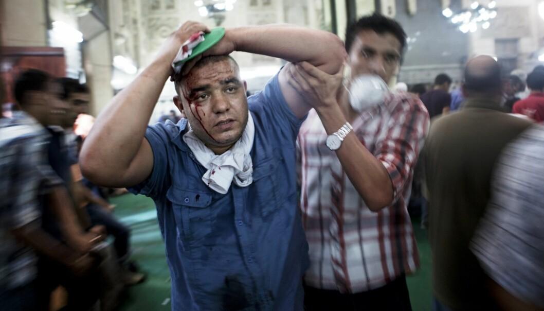 VOLDSDRAMA: Den norske frilansjournalisten Anders Sømme Hammer er der det skjer i Kairo. Fredag tok han dette bildet etter at en kule hadde streifet mannens hode. Foto: Anders Sømme Hammer