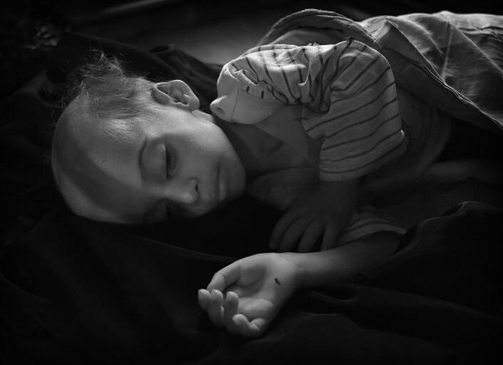 Ahmed er 1 år 2 mnd. og veier 6,55 kg. Kritisk underernæring kan gi livstruende svikt i organer som lever og nyrer, og mange vil aldri vokse seg til normal størrelse. Foto: Harald Henden, VG