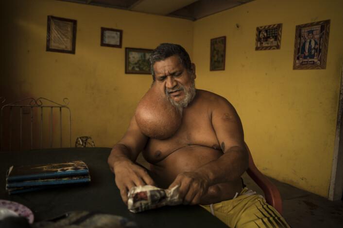 André Liohns bilder fra Venezuela kåret til beste nyhetsbilder fra utlandet