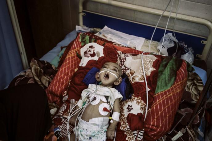 Taif Fares gisper etter luft i intensivavdelingen på Al-Sadaqa sykehus, Aden, Jemen, 21. mai 2018. Hun hadde en hjertesykdom og trengte konstant omsorg. Forsyning av oksygen og medisin til sykehuset hadde blitt avbrutt, og den 14. mai hadde en voldelig konfrontasjon mellom et militærmedlem som kontrollerte sykehuset og en lege ført til at leger gikk i streik. Taif døde noen dager etter at fotografiet ble tatt. Foto: Lorenzo Tugnoli / Contrasto, for The Washington Post