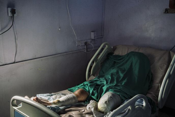 Wafa Ahmed Hathim (25) mistet sitt venstre ben når en mørtel landet på huset hennes i den strategisk viktige Rødehavshavnen i Hudaydah 8. desember - samtidig som det det pågikk langvarige fredsforhandlinger i Sverige. Foto: Lorenzo Tugnoli / Contrasto, for The Washington Post