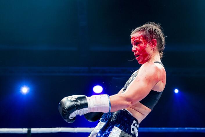 Norges Katharina Thanderz hadde en blodig kamp mot Danila Ramos (Brasil) under et bokstevne i Oslo. Foto: Håkon Mosvold Larsen / NTB scanpix